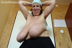 Gilf with Huge Saggy Breasts Gigantomastia
